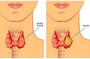 ندول منفرد تیروئید Thyroid nodule - دکتر پریسا علمی- بهترین متخصص و جراح زنان و زایمان